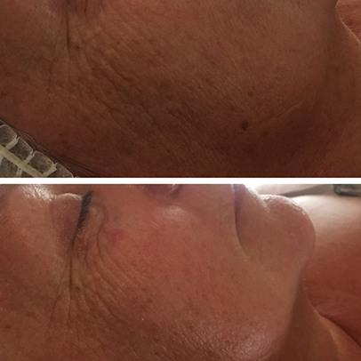 institut de beaute a Pegomas-soins du visage Auribeau-sur-Siagne-massages La Roquette-sur-Siagne-epilation definitive Mouans-Sartoux-vernis semi-permanent Tanneron-rehaussement de cils Pegomas-centre esthetique Pegomas
